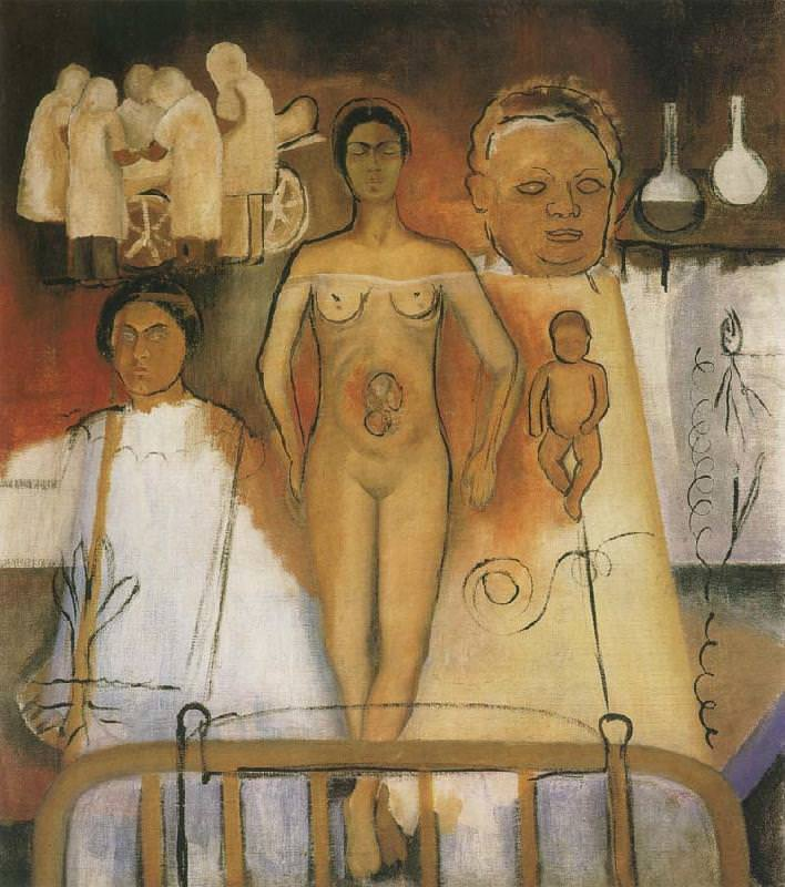 frida-and-the-cesarean-operation.jpg
