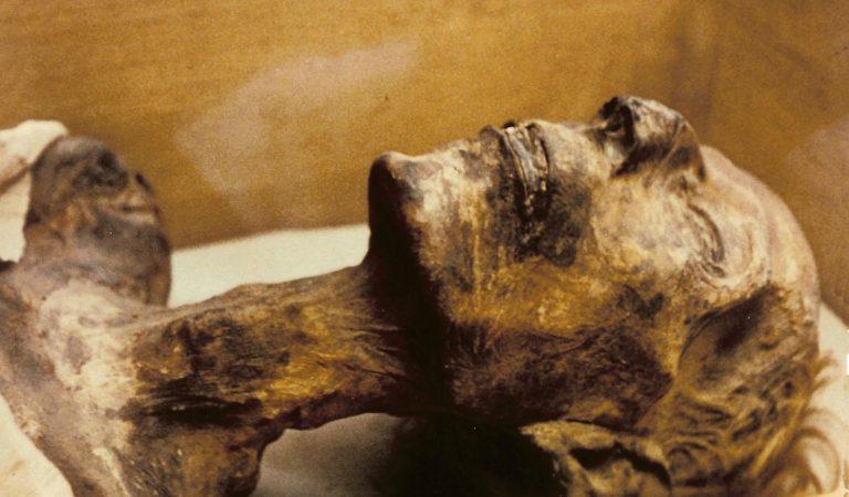 السرطانات التي تم اكتشافها داخل مومياوات مصرية تكشف تطور رهيب في طريقة عمل السرطانات .